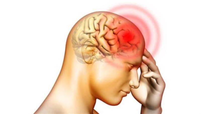 Bệnh viêm màng não